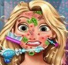 Rapunzel médico do rosto
