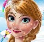 Tratamento facial da Anna