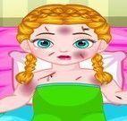 Anna bebê curativo