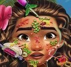 Moana tratamento facial