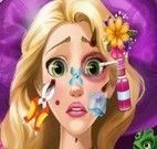 Princesa Rapunzel machucada