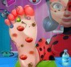 Ladybug tratamento do pé
