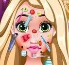 Rapunzel no dermatologista