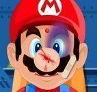 Cuidar do Mario machucado