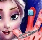 Machucados da mãos da Elsa