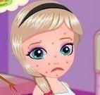 Elsa babê com alergia
